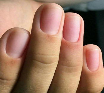 Varieties of cuticles and methods of working with them