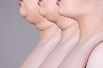 Mission possible: how to get rid of a double chin